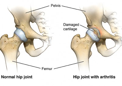 Tight hip joints and what you can do about them