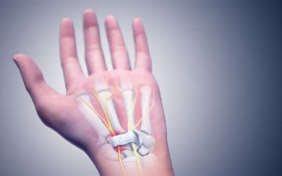 "Many people with ""carpal tunnel syndrome"" are misdiagnosed"