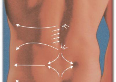 New Evidence on NeuroTactile® Therapy (bindegewebsmassage)